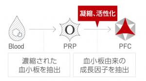 PRP療法/PFC-FD療法